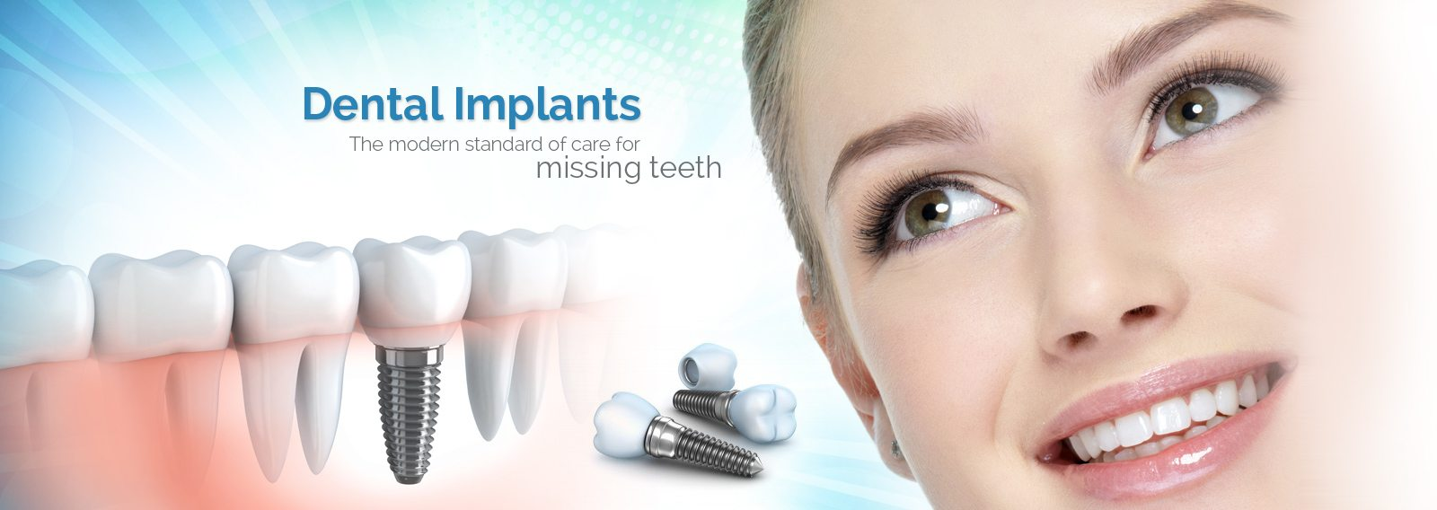 implant is the ideal solution