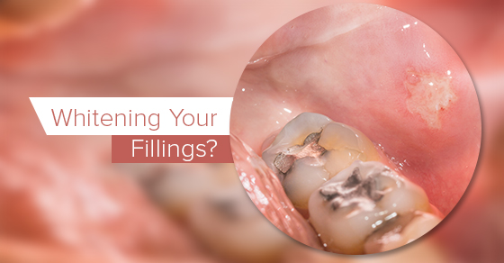 Whitening-Your-Fillings